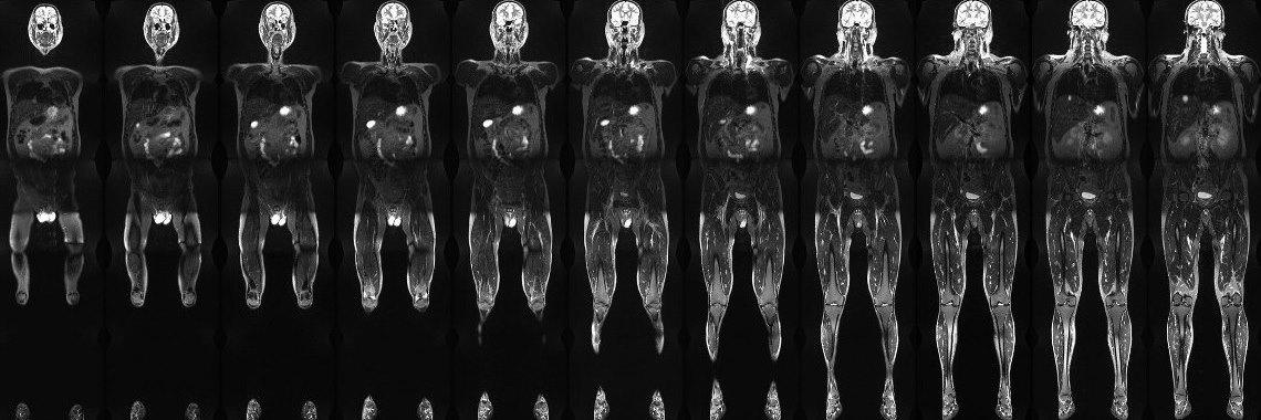Medical image series