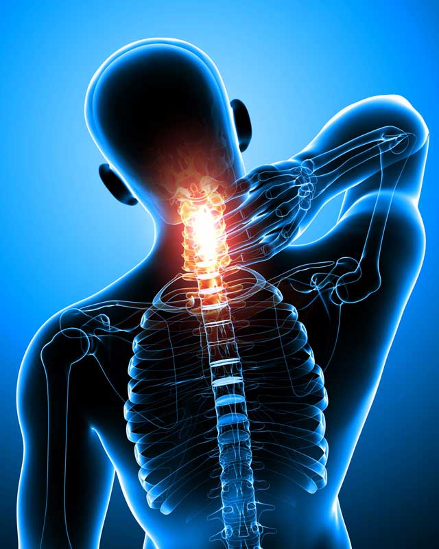 Physical Medicine Neck Pain Illustration