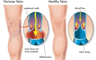Cosmetic Issues with Varicose Veins? Or …