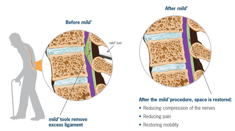 Mild Procedure