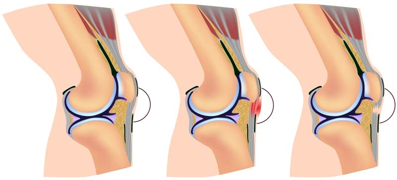 When Your Knee Is Still Hurting, Months After Total Knee Replacement